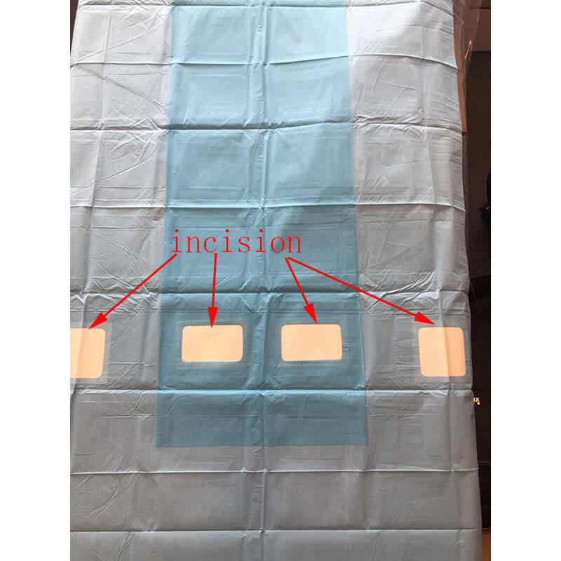 Angiography sterile drape for Hospital | Medical Drapes Manufacturer