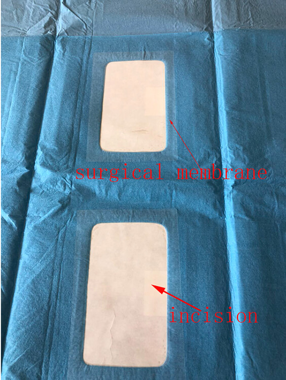 sterile drape for angiography procedure