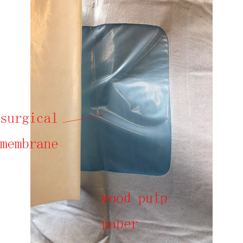 surgical angiography drape for angiography procedure